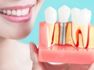 Dental implants South Yarra