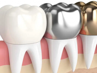 Dental Crowns Gold Coast