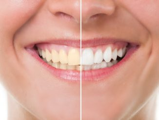 Teeth whitening Newcastle