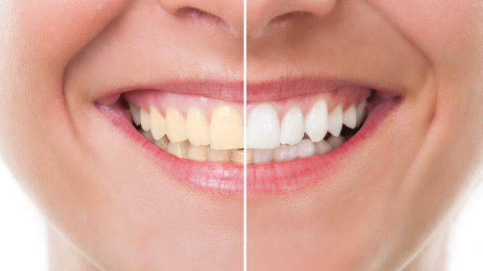 Teeth whitening Newcastle